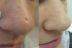 Los siguientes ingredientes naturales te ayudaran a eliminar la cicatrices en tu piel y no tienen efectos secundarios...