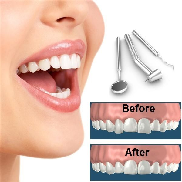 Tooth Reshaping and Contouring: Enamel reshaping and contouring, is a system to correct crooked tooth, chipped or irregularly shaped teeth and even overlapping teeth in a single session.