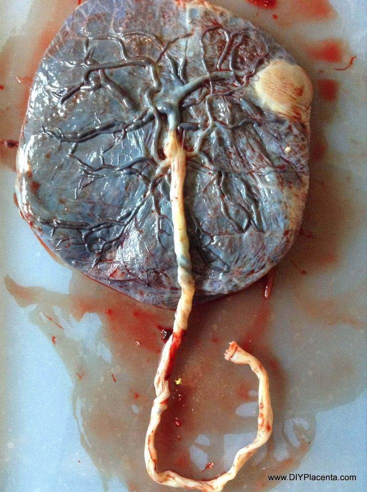12 best images about placenta photography on pinterest for Fresh art photography facebook