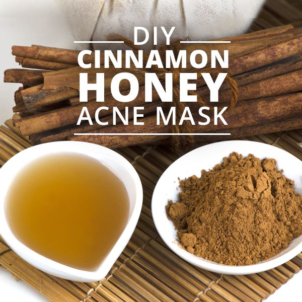 DIY+Cinnamon+Honey+Acne+Mask