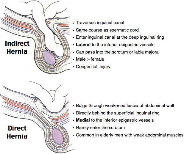 Indirect vs Direct Hernia Inguinal Hernias Bimodal: < 1 and > 40 Direct: Protrudes directly through Hesselbach's triangle and medial to the inferior epigastric artery (IEA) Bulge ↓ upon reclining Indirect: ​​Most common Protrudes through internal ring, lateral to IEA ​Medial to IEA: Direct; Lateral to IEA: Indirect (MDs dont LIe) Strangulation risk: indirect > direct Nonreducible hernia: emergent surgery consultation