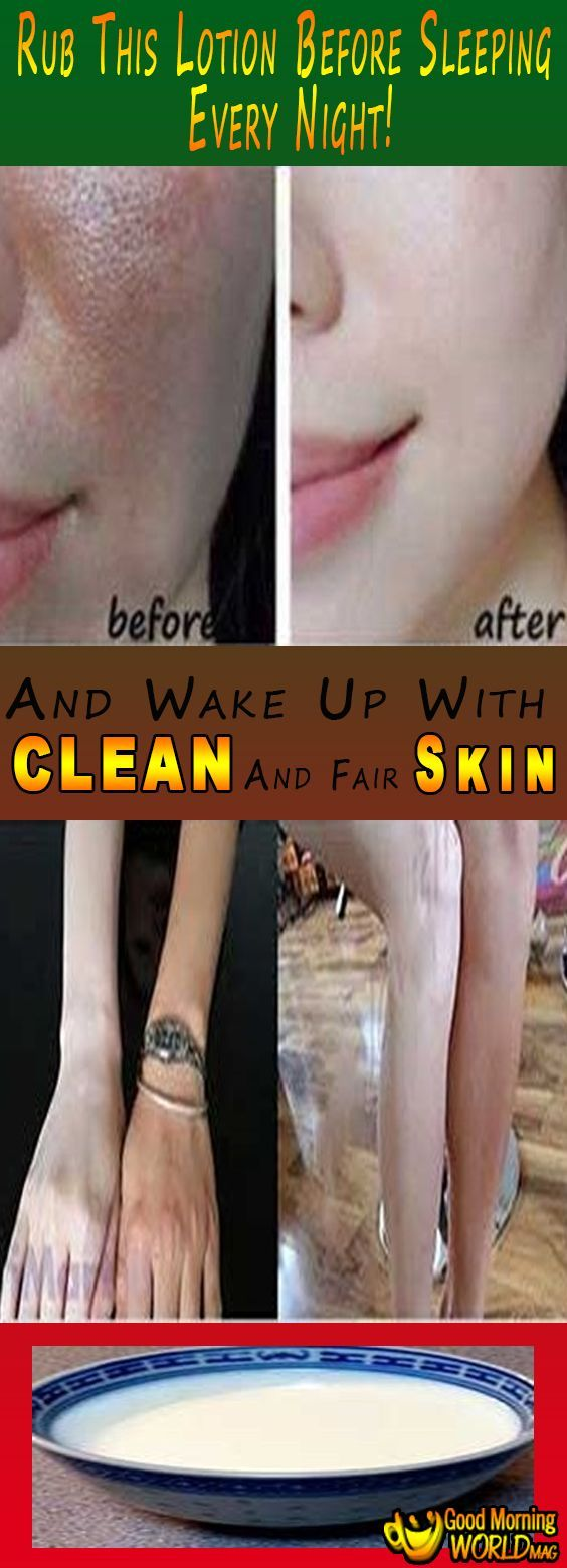 My skin became so fair like Snow white, I am so happy. I didn't think that this formula can be really this effective. But I gave it a try and it did amazing job. Lotion is really easy to make use.