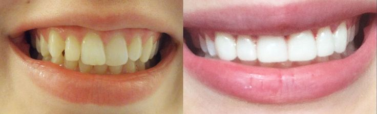 How to get INSTANT STRAIGHT teeth without braces, Veneers & whitening ex...