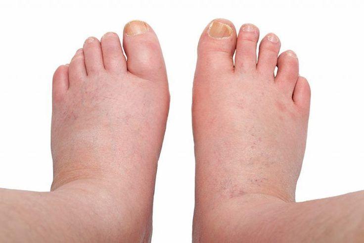 dikke voeten enkels