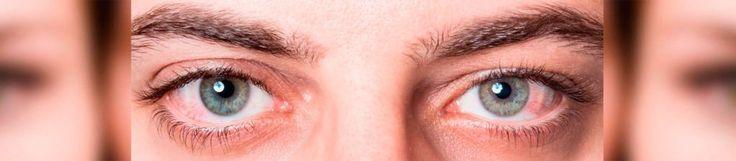 Es este enrojecimiento que inflaman los vasos sanguíneos de las membranas que recubren el ojo provocando una hemorragia subconjuntival.
