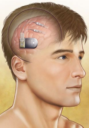 Brain Stimulator Offers Hope for Individuals With Uncontrolled Epilepsy - http://scienceblog.com/71905/brain-stimulator-offers-hope-for-individuals-with-uncontrolled-epilepsy/