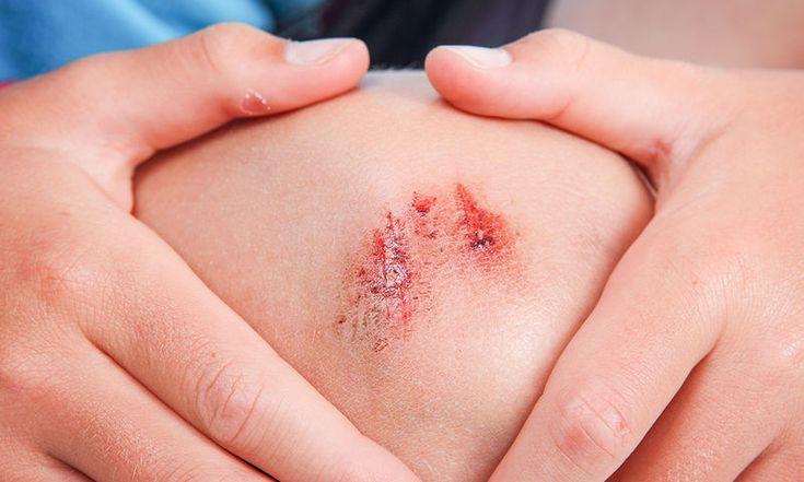 Κοψίματα, εκδορές, γρατζουνιές: Αντιμετώπιση με 5 θεραπείες από φυσικά υλικά - http://www.daily-news.gr/health/kopsimata-ekdores-gratzounies-antimetopisi-5-therapoies-apo-fysika-ylika/