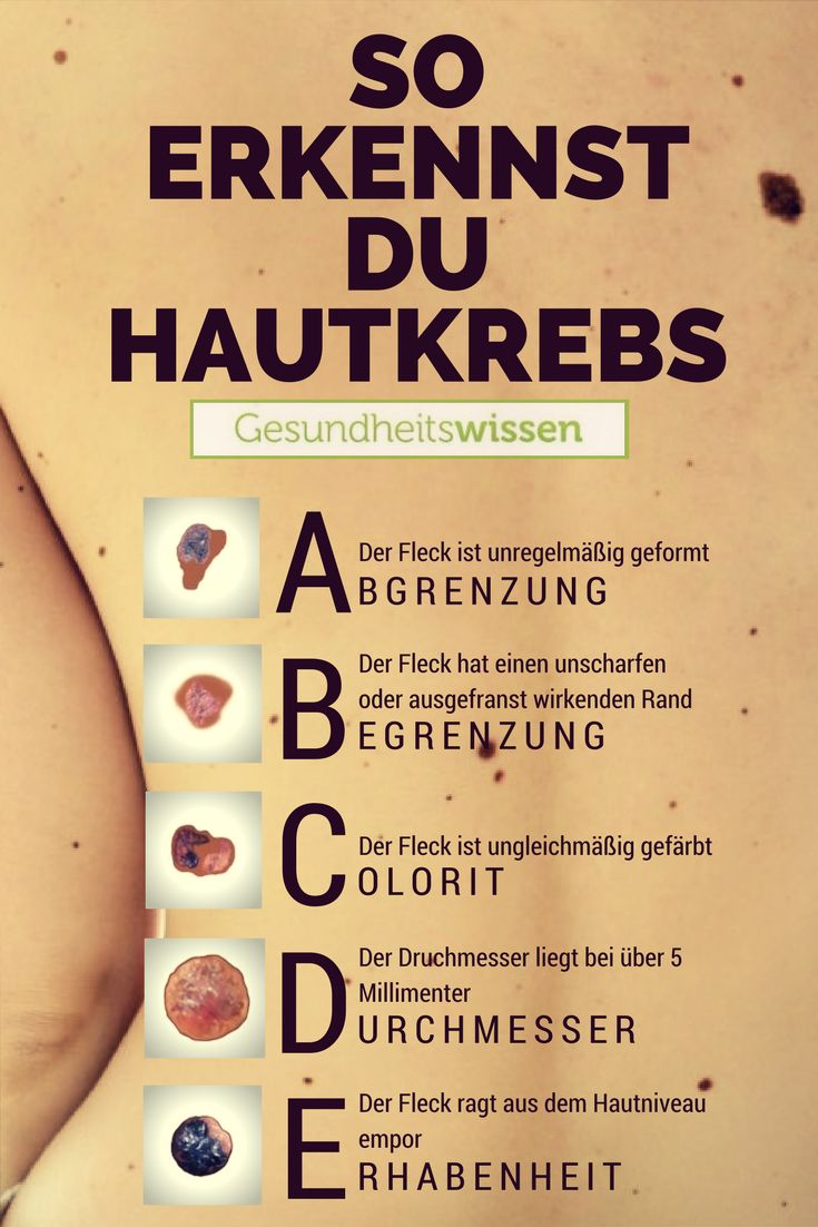 Das Hautkrebs ABCDE: Je mehr dieser Kriterien vorliegen, desto größer ist das … Gesundheitswissen
