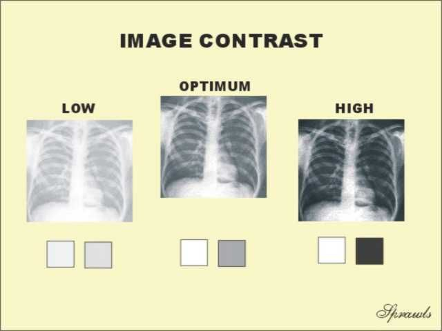 High Contrast Vs Low Contrast Radiography Google Search