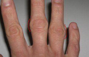 Почему болят пальцы на руках: причины боли суставов пальцев правой и левой руки