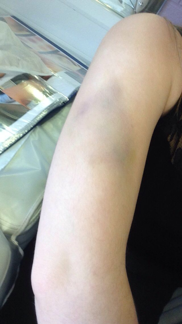 Old bruise on the arm