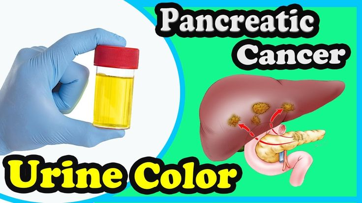 The Common Symptoms Of Pancreatic Cancer You Should Know