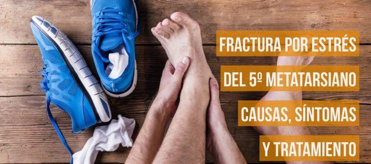 Fractura por estrés del 5º Metatarsiano: Causa síntomas y tratamiento