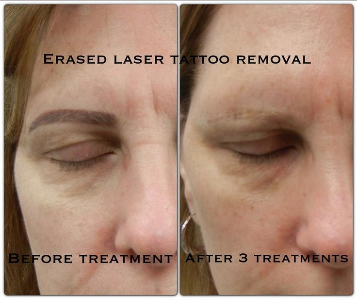 Best 25 eyebrow tattoo removal ideas on pinterest laser for Eyebrows tattoo removal laser