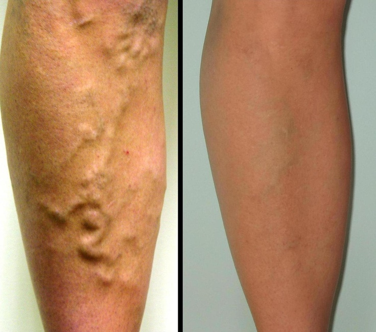 14 best before/after images on pinterest | varicose veins, Cephalic Vein