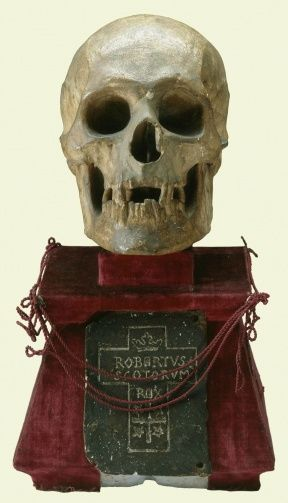 Plaster cast of the skull of King Robert I of Scotland (Robert the Bruce). The stand is inscribed: Cast in plaster by Wm Scouler 1819. Interred 1329. Re-interred 1819.