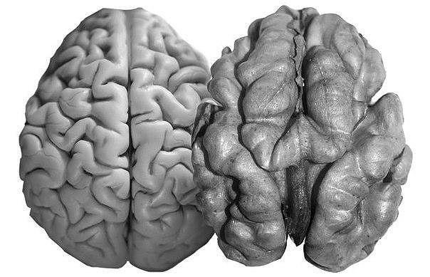Девять интересных фактов о мозге человека   1. Мозг, как и мышцы, чем больше его тренируешь, тем больше он растет. Мозг среднего взрослого мужчины весит 1424 г, к старости масса мозга уменьшается до 1395 г. Самый большой по весу женский мозг — 1565 г. Рекордный вес мужского мозга — 2049 г. Мозг И. С. Тургенева весил 2012 г. Мозг эволюционирует: в 1860 году средний вес мужского мозга составлял 1372 г. Наименьший вес нормального неатрофированного мозга принадлежал 31-летней женщине — 1096 г…