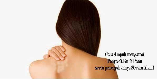 cara ampuh mengatasi penyakit kulit panu serta pencegahannya secara alami read more http://top-ampuh.blogspot.co.id/2016/02/cara-ampuh-mengatasi-penyakit-kulit.html
