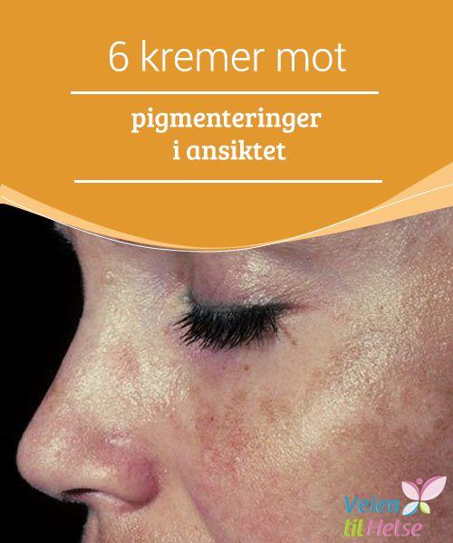6 kremer mot pigmenteringer i ansiktet  Misfargede #områder i huden, som #pigmentflekker (melasma) og sorte prikker, #forekommer oftest på kinn, panne og på #overleppen – men også i nakken.