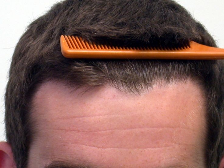 13 best Hair Transplant in Saudi Arabia images on Pinterest ...