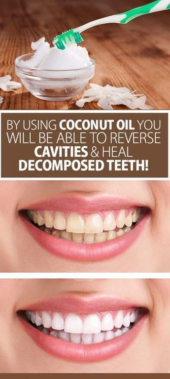 Athole Institute has conducted a study that has shown that coconut oil is far better than any other ingredients for maintaining the teeth clean and health. #teethcleaning