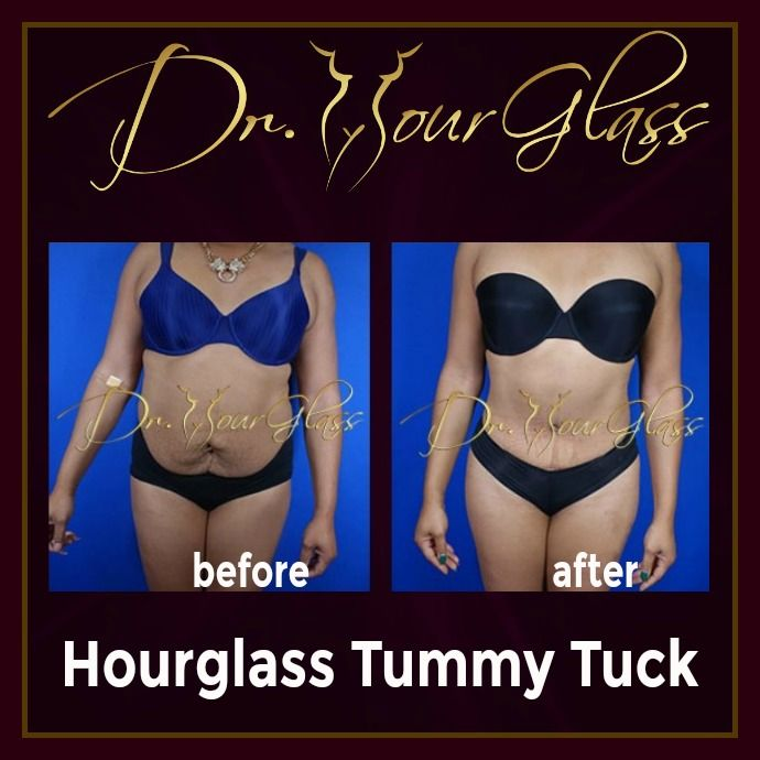 We're very excited to show you her amazing result after the Hourglass Tummy Tuck procedure by Dr. Hourglass. This procedure is the only tummy tuck technique that can provide you an hourglass shape. Isn't gorgeous?