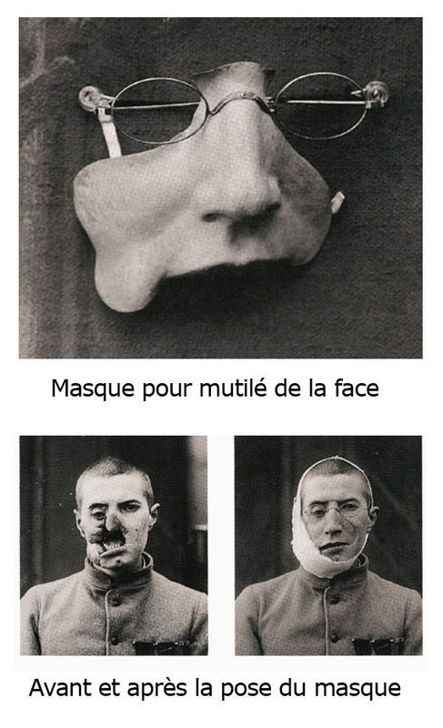 Early plastic surgery art -- artists made masks for many men wounded in the face…
