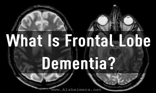"""Frontal lobe dementia, also known as frontotemporal dementia, is a form of dementia that occurs when the frontal lobes of the brain begin to shrink (or """"atrophy""""). Experts estimate that it is responsible for 10%-15% of dementia cases."""