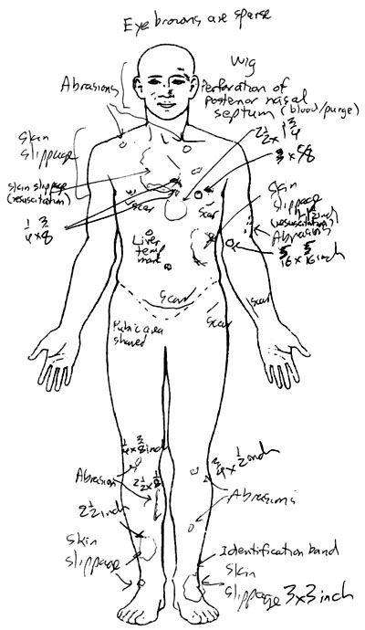 Los Angeles Coroner Releases Whitney Houston Autopsy