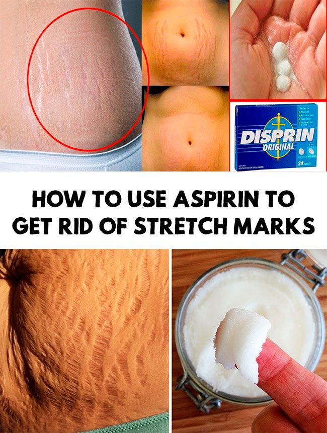 4 Diy Ways To Get Rid Of Stretch Marks With Images Stretch