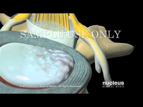 Radiculopatia Lumbar  Hernia  Dermatomos - YouTube
