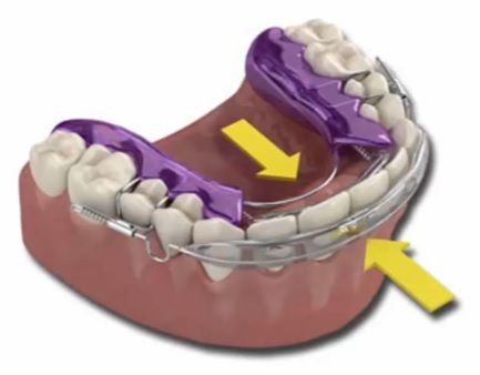 The Beauty of Inman Aligner