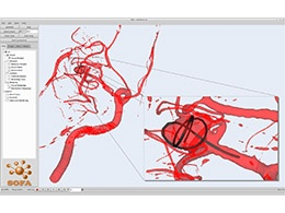 Simulation d'embolisation d'un anévrisme intracrânien (consultez également la vidéo)