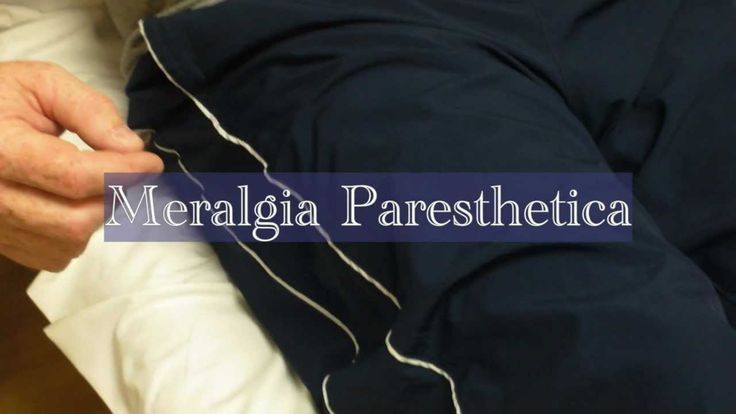 Meralgia paresthetica or Meralgia paraesthetica is numbness or pain in the outer thigh not caused by injury to the thigh, but by injury to a nerve that extends from the thigh to the spinal column.... http://www.natural-health-news.com/meralgia-paresthetica-causes-symptoms-diagnoses-and-treatment/