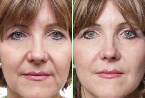 Use These Special Facial Yoga Treatments For Treating And Tightening Flabby Cheeks And Jowls