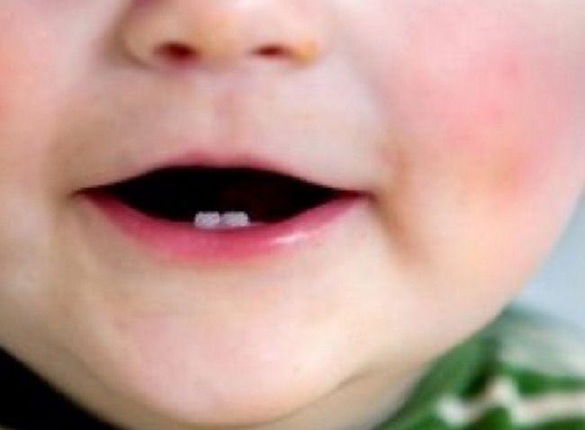 Jeder kennt es: Die Milchzähne kommen durch und dann fallen sie auch wieder aus. Für Kinder ist das ein spannendes...