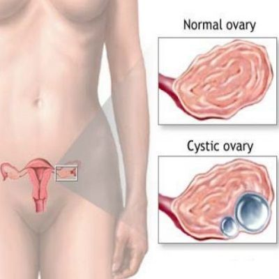 Home Remedies For Ovarian Cysts - Natural Treatments & Cure For Ovarian Cysts | Home Remedies, Natural Remedy