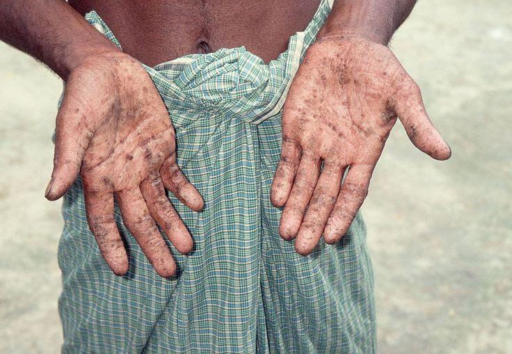 http://www.poorworld.net/Bilder_Bangladesh/Bilder_Wasser/Achintanagar_Haut_Arsen-F_Waterdotorg.jpg