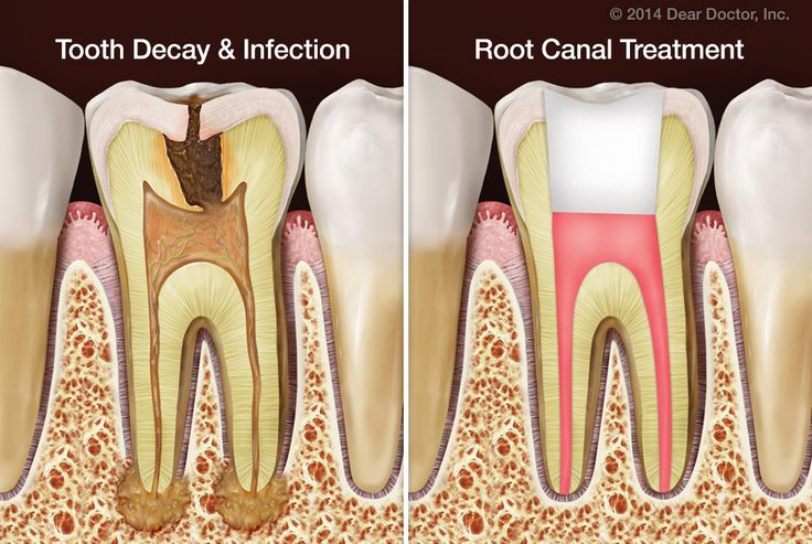 We've all heard the myth about root canal treatment: that nothing could be more unpleasant. But did you know that root canal treatment doesn't cause pain—it relieves it? Find out more. #Root #canal #treatment