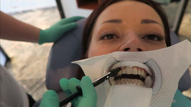 Je hebt verschillende opties voor het bleken van je tanden.