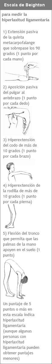 Síndrome de Hiperlaxitud Ligamentaria (SHL) - Red Ehlers-Danlos Argentina
