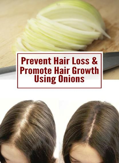 Tips for preventing hair loss & promoting hair growth using onions