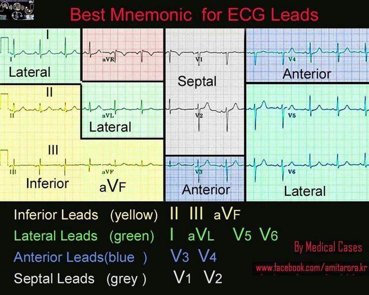 Image result for ECG Nursing Mnemonics