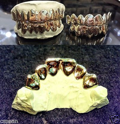 Grillz Dental Grills 152808: 10K Solid White Gold Custom Fit 8Pc Real Grill Gold Teeth.*Free Molding Kit* -> BUY IT NOW ONLY: $260 on eBay!