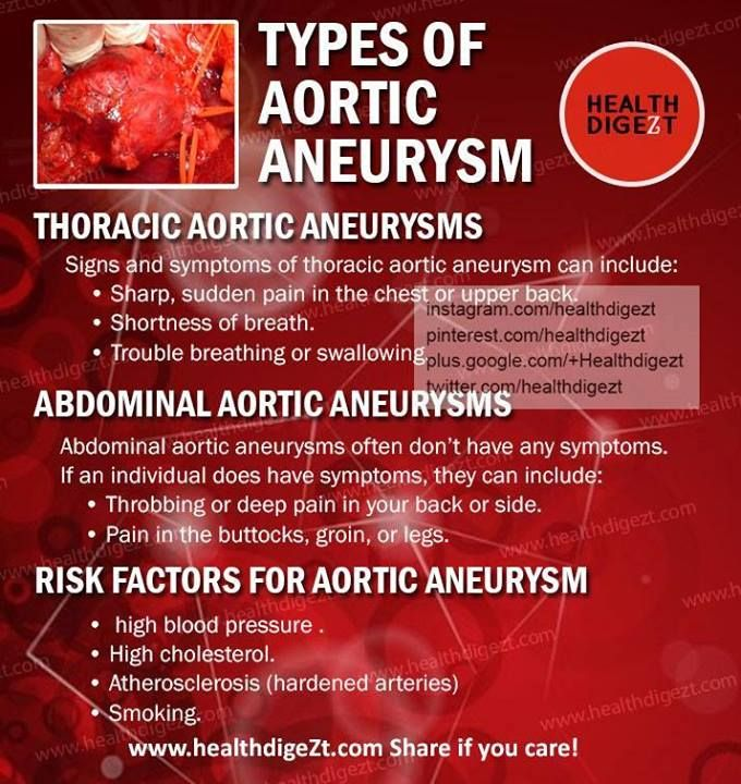 40 best aneurysms images on pinterest   brain aneurysm, medical, Human Body