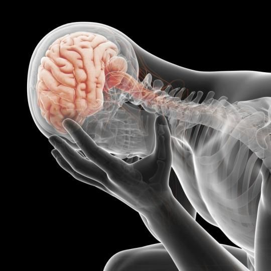Migraines are inherited neurological disorders characterized by hyper-excitable brain networks that result in attacks.