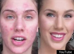 Acne cover up with makeup. Awesome video she is amazing and beautiful!