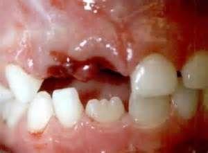 Est-il possible de réimplanter une dent avec sa racine ?