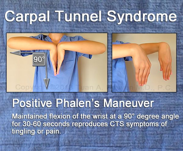 Phalen's maneuver for assessing Carpal Tunnel Syndrome. Phalen's maneuver produces paresthesia of the median nerve distribution within 60 seconds; 80% of clients diagnosed with carpal tunnel syndrome have a positive result.