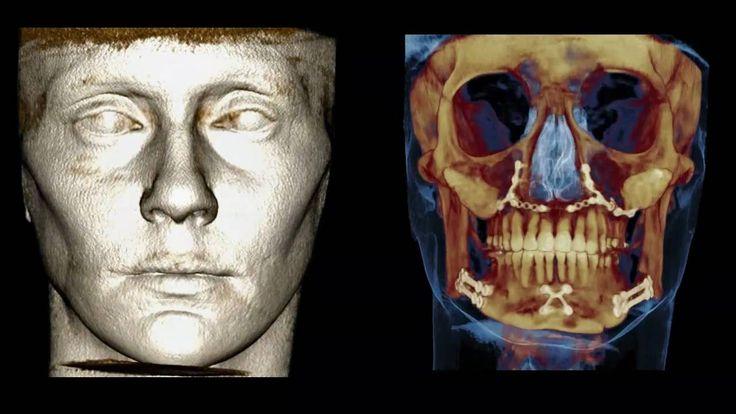 Niesamowity #tomograf #NewTom 5G #dentysta #stomatolog #estetyka #wizerunek #zdrowie #wybielanie #protetyka #diagnostyka #ortodoncja #endodoncja #implanty #chirurgia #warszawa  www.declinic.pl
